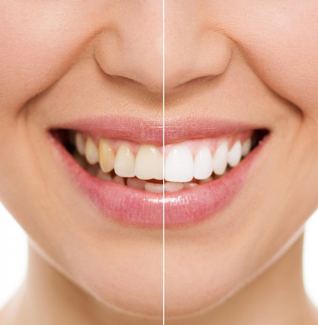 crest-whitestrips-example