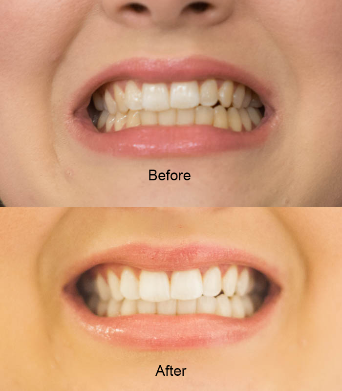 What Are The Benefits Of Teeth Whitening Strips Pros And Cons